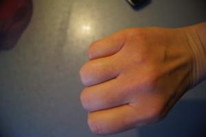 Sucha skóra na dłoni ;)