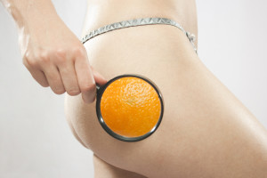 Young beautiful woman with magnifier checking for Cellulite